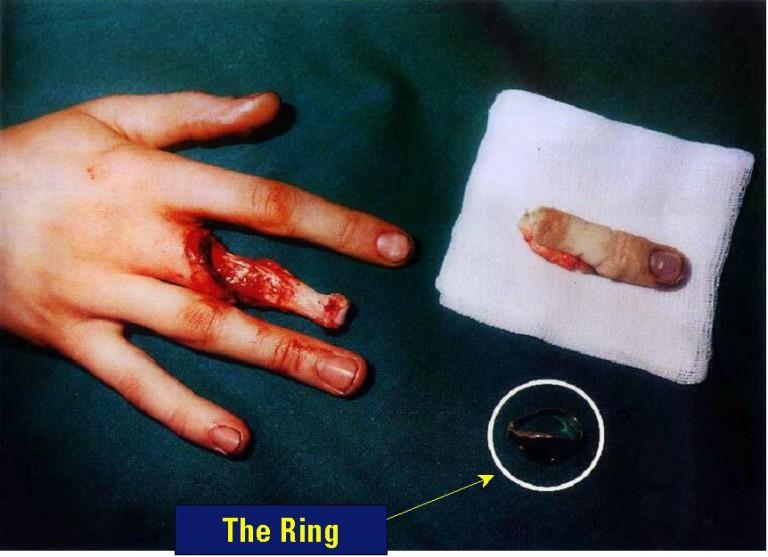 как снять кольцо с ушибленного пальца термобелье Женская линия